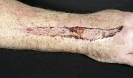 Documentation of injury to right arm.