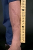 Followup image of injury with ruler.